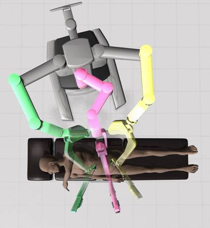 da Vinci robot assembled to the operating trocars