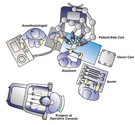 Operating room configuration for left robotic adrenalectomy