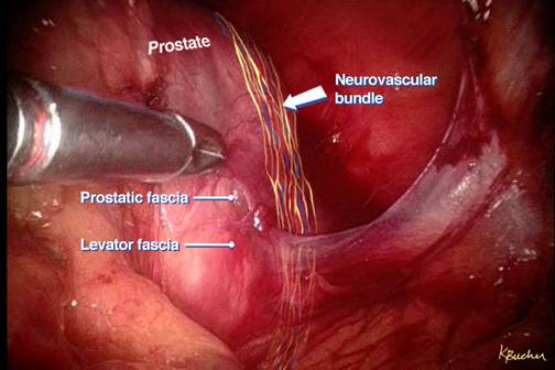 Sexual recovery after prostate surgery